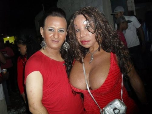 plastic-surgery-fail-3