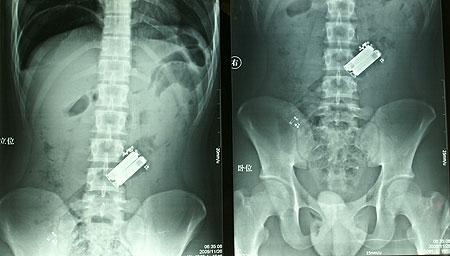 x-ray-remote