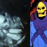Ultrasound horrors: these human embryos look familiar
