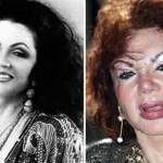 Jackie Stallone's Changing Face